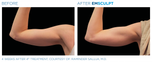 emsculpt arms northern virginia