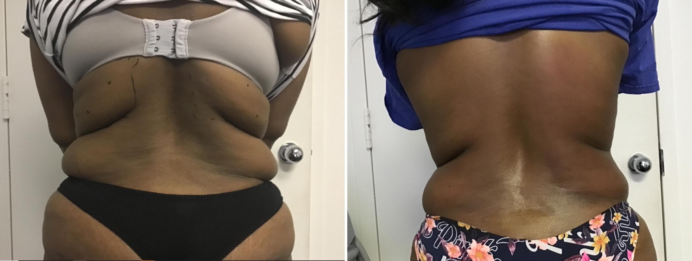 Back Fat Reduction Arlington
