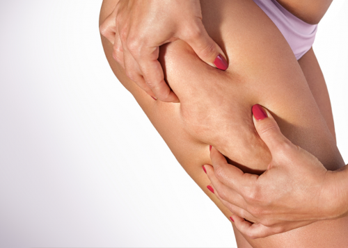 What Causes Cellulite + How to Get Rid of It with Venus Bliss